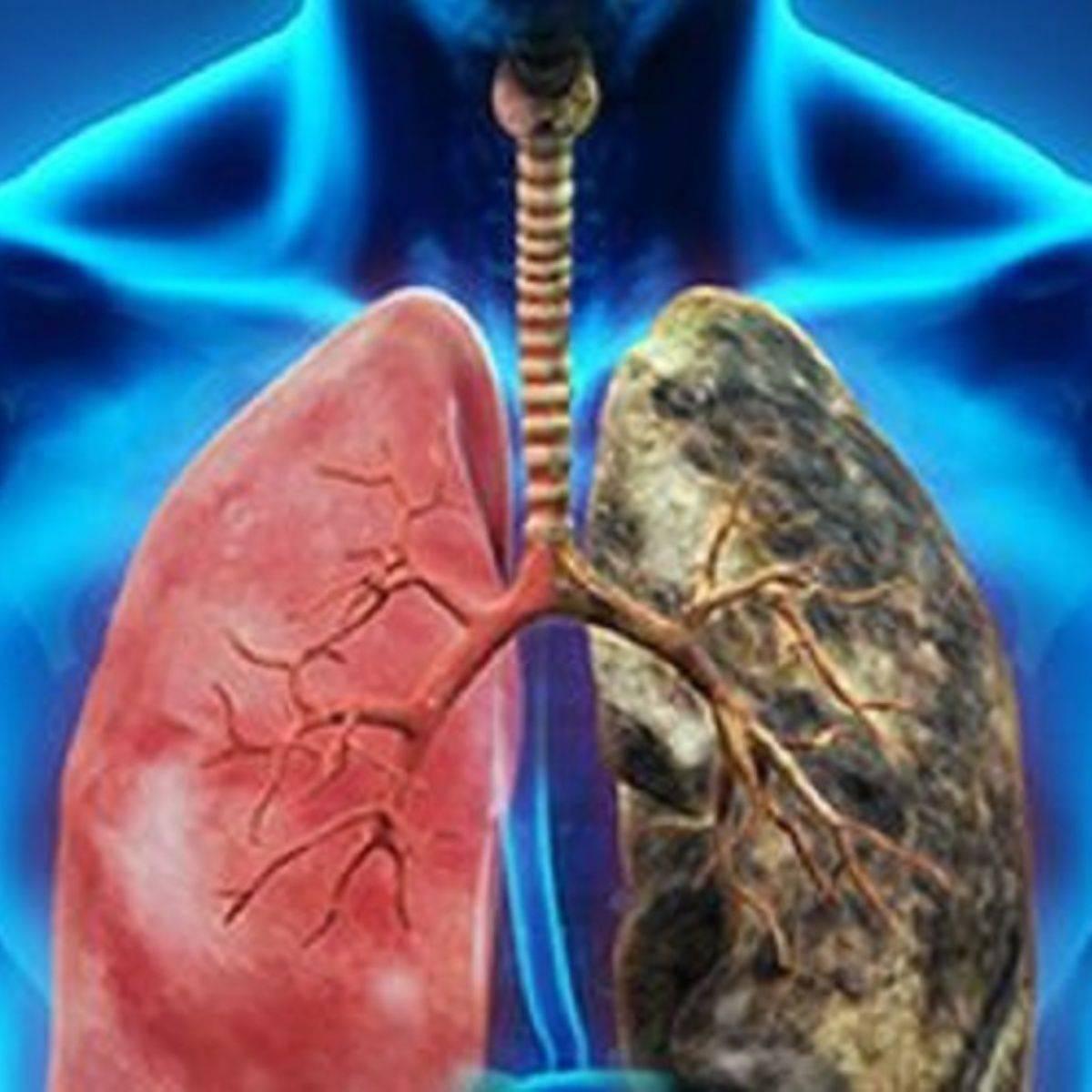 La Unión Europea ha registrado 273.400 muertes por cáncer de pulmón durante 2015.