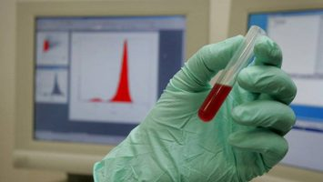 La empresa Synlab Diagnósticos Globales será la encargada de realizar las pruebas anti dopaje a los aspirantes a la Guardia Civil.