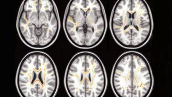 A más problemas tiene un niño para realizar las tareas diarias, más atípica es la estructura de sus fibras nerviosas en ciertas áreas del cerebro (rojo, amarillo)